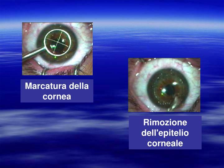 Marcatura della cornea