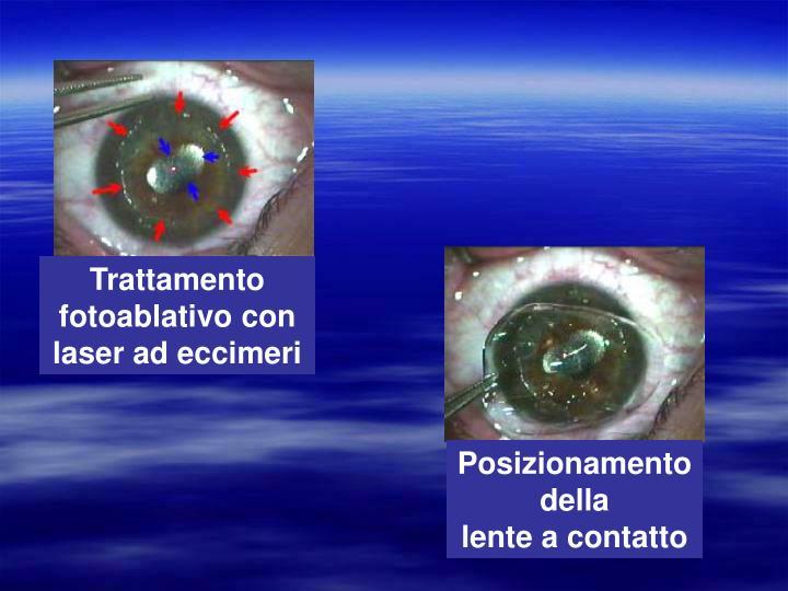 Trattamento fotoablativo con laser ad eccimeri