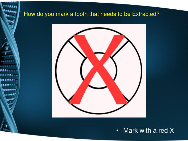How do you mark a tooth that needs to be Extracted?