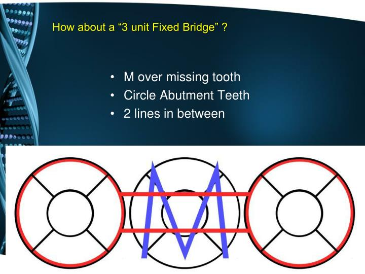 "How about a ""3 unit Fixed Bridge"" ?"