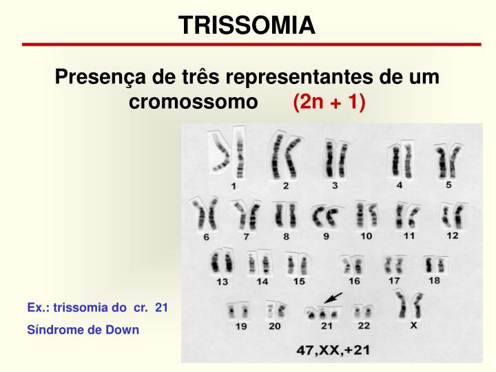 TRISSOMIA