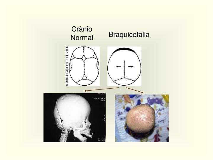 Crânio Normal