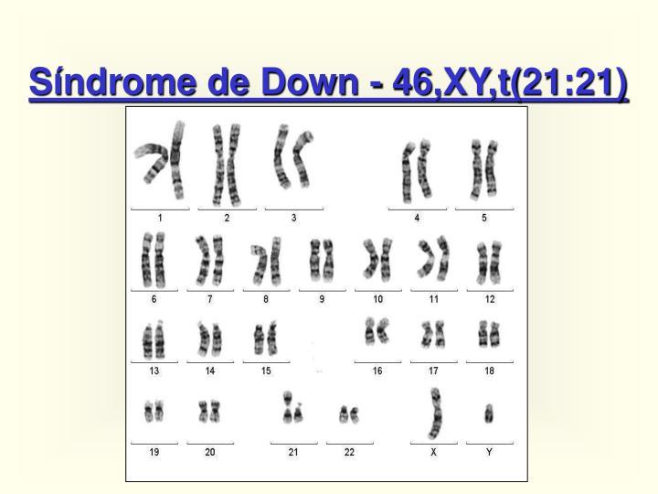Síndrome de Down - 46,XY,t(21:21)
