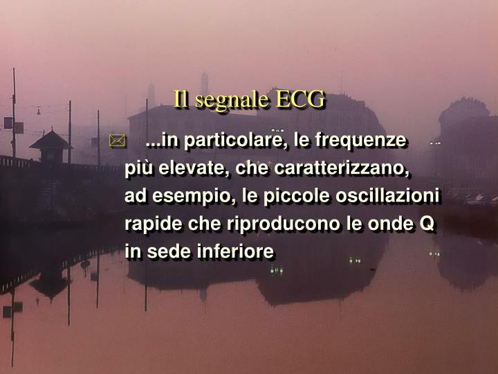 Il segnale ecg1