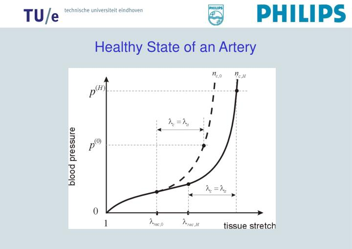 Healthy State of an Artery