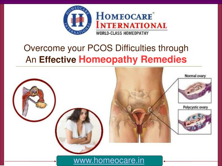 Overcome your pcos difficulties through an effective homeopathy remedies